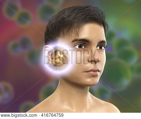 Otitis Media, A Group Of Inflammatory Diseases Of The Middle Ear, 3d Illustration Showing A Boy With
