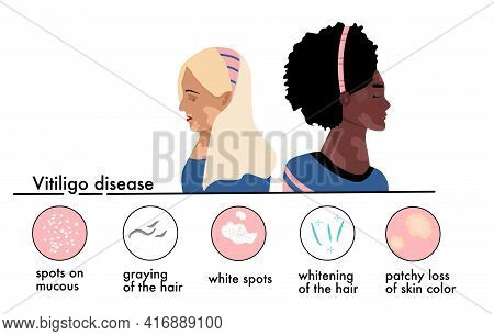 World Vitiligo Day.young Women Different Ethnicities With Skin Disease.depigmentation Problem.patchy