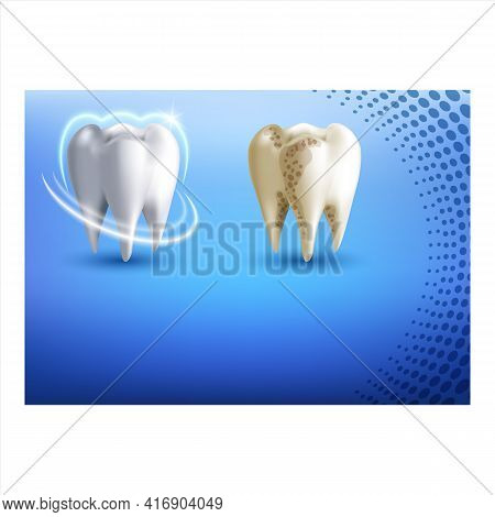 Teeth Whitening Creative Promotional Poster Vector. Teeth Whitening Treatment In Dental Clinic Adver