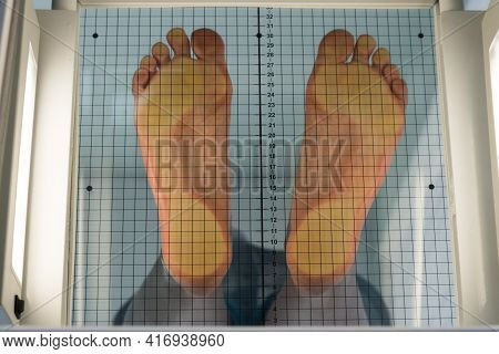 The Patient Stands On A Special Apparatus For Determining Flat Feet. The Orthopedic Surgeon Evaluate