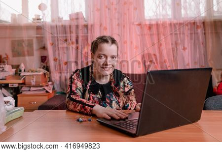 A Disabled Girl With Slanted Eyes Is Sitting At A Desk And Working On A Laptop.