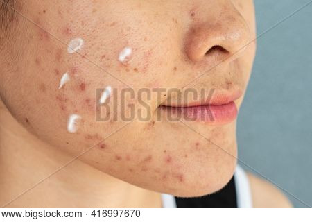 Close Up Of Woman Cheeck With Acne Inflammation (papule And Pustule) On Her Face And She Applying Ac