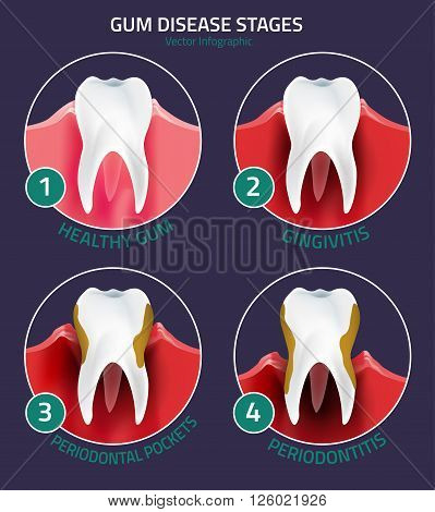 Teeth infographic. Gum disease stages. Editable vector illustration in modern style. Medical concept in red, green and white colors on a darl violet background. Keep your teeth healthy