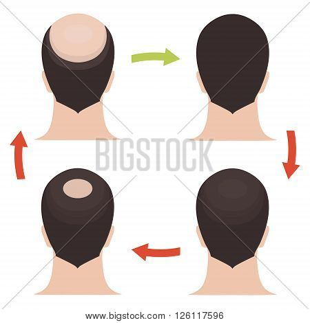 Hair loss stages set. Rear view of a man losing hair before and after hair treatment and hair transplantation. Implantation of hair. Male hair loss pattern. Alopecia. Hair growth. Vector illustration.