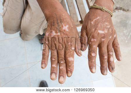 Skin Disorder