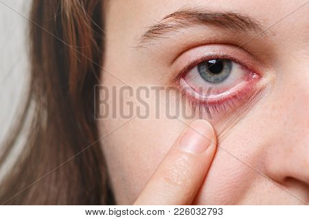 Medicine, Health Care And Eyesight Concept. Unrecognizable Female Shows Her Inflated Red Eye With Bl