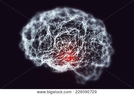 Dementia Medical Concept