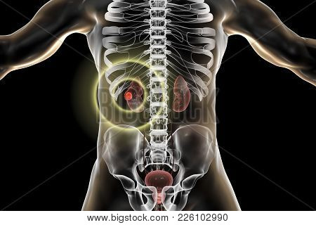 Treatment Of Kidney Cancer, Conceptual Image. 3d Illustration. Kidney Tumour Disease Therapy And Pre