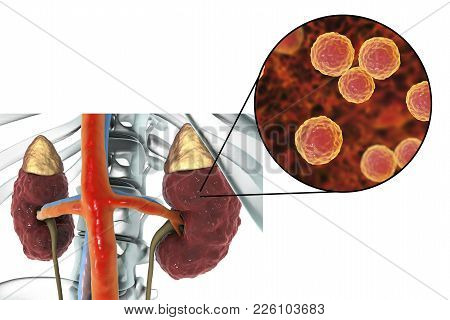 Pyelonephritis, Medical Concept, And Close-up View Of Bacteria Enterococcus, The Common Causative Ag