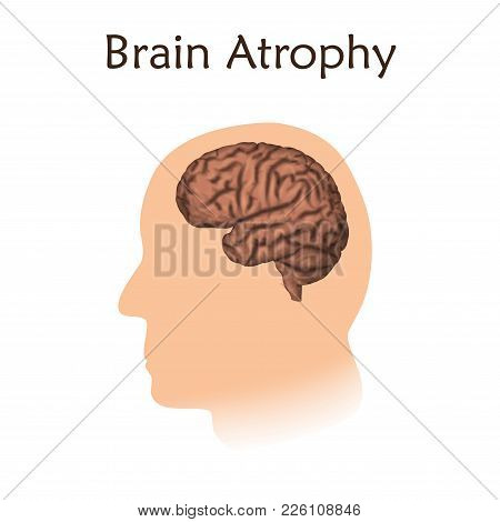 Brain Atrophy. White Background. Silhouette Of Head