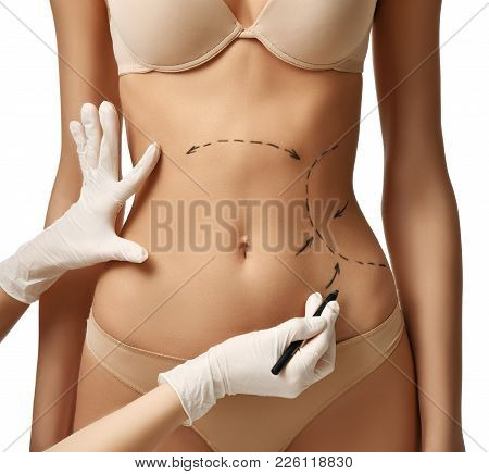 Female Body With The Drawing Arrows On Tummy For Plastic Surgery  Liposuction Isolated On White. Fat