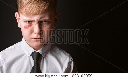 Portrait Of A School Boy With A Wound On His Face. Concept Of Adolescent Violence.