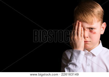 Portrait Of A Schoolboy With A Wound On His Face On A Black Background. Concept Of Adolescent Violen