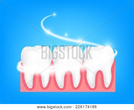 Whitening Of Human Tooth. Deep Cleaning, Clearing Tooth Process. Dental Health Concept. Oral Care, T