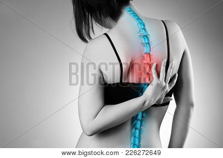 Pain In The Spine, Woman With Backache, Injury In The Human Back, Black And White Photo With Highlig