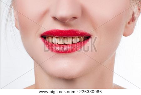 Woman Teeth Before Bleaching.teeth Whitening At The Dentist. Yellow Teeth, Plaque Cleaning On Teeth