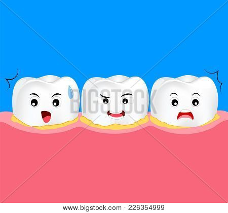 Tooth Character Periodontal Disease With Plaque Or Tartar. Dental Care Concept. Cute Cartoon, Illust