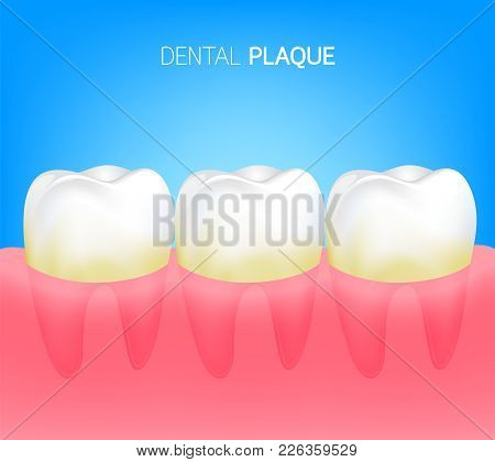Plaque On Human Teeth. Dental Care Concept. Illustration Isolated On Blue Background.