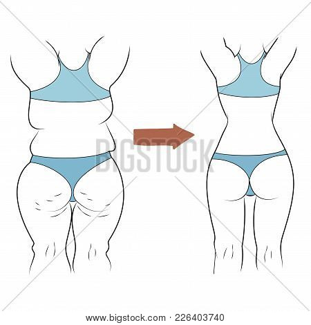 The Result Of The Figure Before And After The Diet. Obesity Vector Illustration. Slender Girl Leads