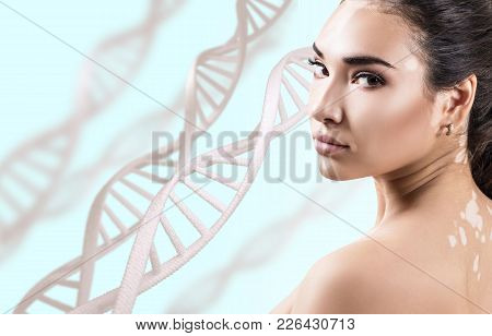 Young Sensual Woman With Vitiligo In Dna Chains Over Blue Background. Biochemistry Skin Concept.