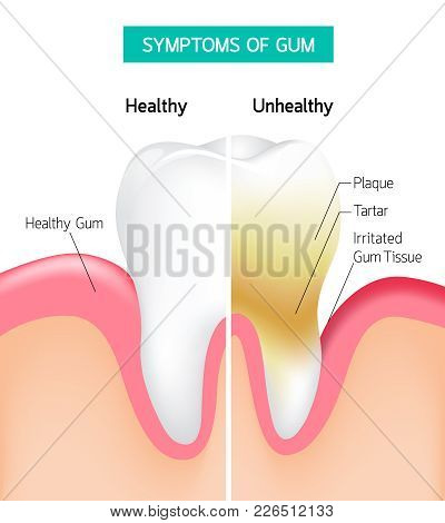 Dental Problem Health Care. Comparison Of Healthy And Unhealthy Tooth Hygiene. Dental Care Infograph