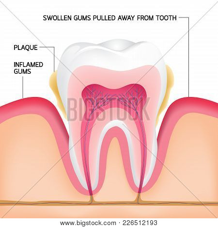 Inside On A Single Tooth With Gums.human Tooth Cross-section. Dental Plaque Problem,  Illustration.