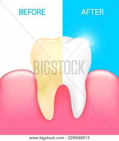 Dental Veneer, Tooth Before And After. Dental Care Concept. Stomatology And Healthcare, White Tooth