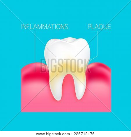 Plaque And Inflammations Gum On Human Tooth Info-graphic. Dental Care Concept. Illustration Isolated