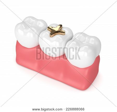 3D Render Of Teeth With Dental Golden Inlay Filling