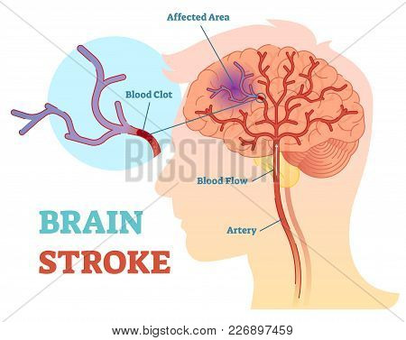 Brain Stroke Anatomical Vector Illustration Diagram, Scheme With Brains Blood Flow And Blood Clot.