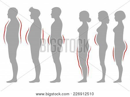 Vector Illustration Of Obesity Woman And Man Body Type, Vector Figure Overweight Silhouette