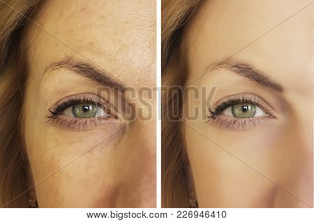 Face Woman Wrinkles Before And After Wrinkled, Elderly, Youth, Lift, Dermatology