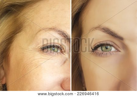 face woman wrinkles before and after wrinkled, elderly, youth, lift, dermatology poster