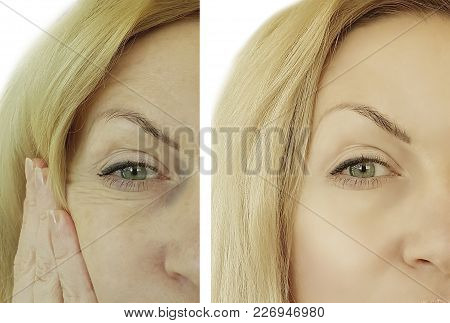 Face Woman Wrinkles Before And After Elderly, Youth, Lift, Dermatology