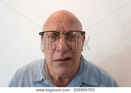 Older Man Bewildered With Horn Rimmed Glasses, Bald, Alopecia, Chemotherapy, Cancer, Isolated On Whi