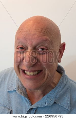 Older Man Gritting Teeth, Bald, Alopecia, Chemotherapy, Cancer, Isolated On White, Vertical Aspect