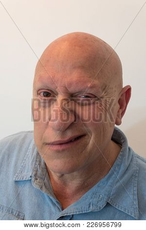Older Man Half Grin, Bald, Alopecia, Chemotherapy, Cancer, Isolated On White, Vertical Aspect