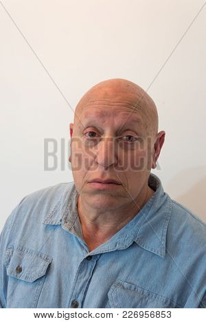 Older Man Looking At Camera, Bald, Alopecia, Chemotherapy, Cancer, Isolated On White, Vertical Aspec
