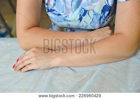 Hands Of The Girl After Hair Depilation. Sugaring Procedure. Suagar Depilation
