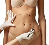 Female body with the drawing arrows on tummy for plastic surgery  liposuction isolated on white. Fat lose and cellulite removal concept poster