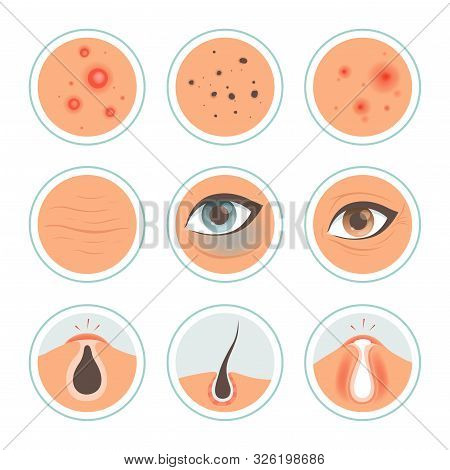 Skin Problems. Dark Circles Woman Infection Spot Washing Skin Oily Face Ages Pore Cleanse Vector Med