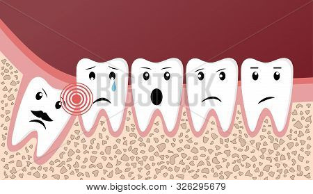 Wisdom Teeth Dental Problems Funny Concept With Cute Teeth With Different Emotions. Vector Illustrat