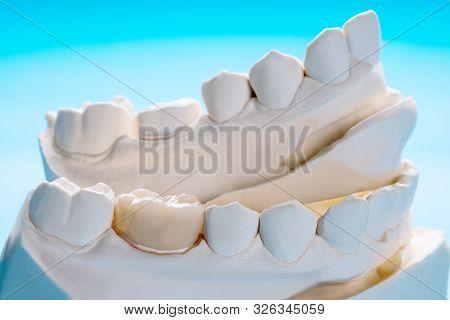 Closeup / Prosthodontics Or Prosthetic / Crown And Bridge Equipment And Model Express Fix Restoratio