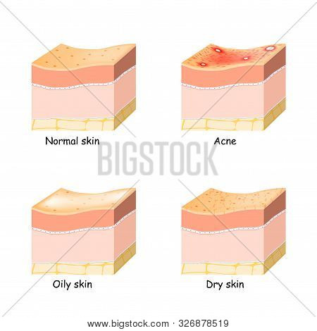 Normal, Dry And Oily Skin. Acne. Skin Disorder. Cross-section Of The Human Skin.