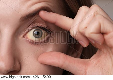 Woman Checking Her Health Condition, Closeup. Yellow Eyes As Symptom Of Problems With Liver