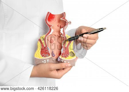 Doctor Pointing At Model Of Unhealthy Lower Rectum With Inflamed Vascular Structures On White Backgr
