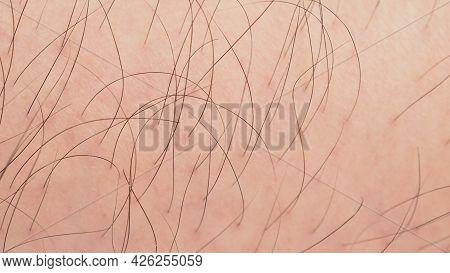Close Up Of Hairy Man Asian Leg.