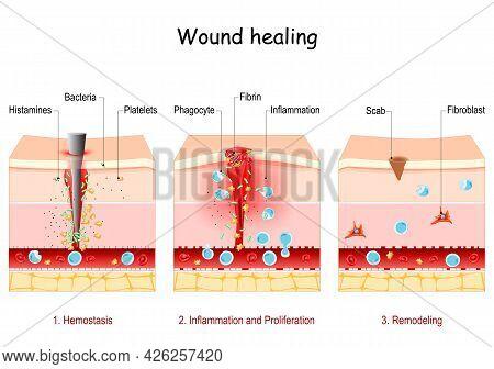 Wound Healing. Stages Of The Post-trauma Repairing Process. Hemostasis, Inflammatory, Proliferative,