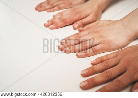 Natural Female Hand Beauty. Many Female Hands Without Manicure. The Trend For Naturalness In Female