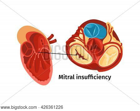 Heart Disease Anatomy Flat Poster With Mitral Insufficiency Vector Illustration